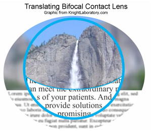 Translating Bifocal Lens
